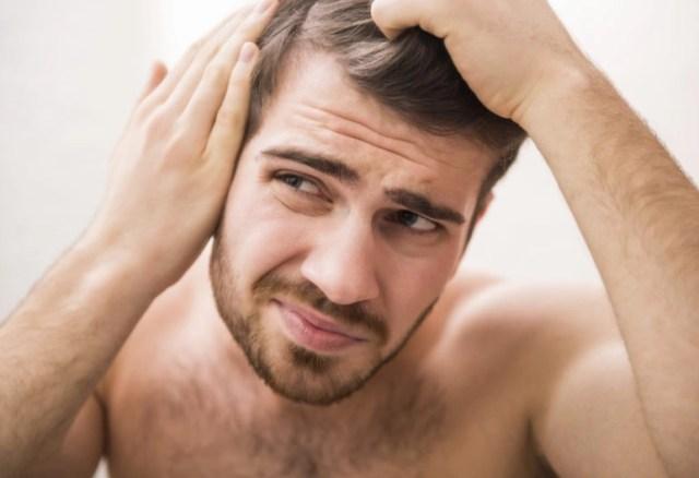 caída-de-cabello