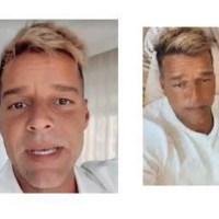 Ricky Martin y la polémica sobre una cirugía facial