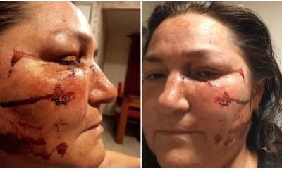 Mujer lesbiana golpeada Movilh 19012021