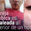 Agresion-Hotel-Movilh-lesbofobia 9964A9