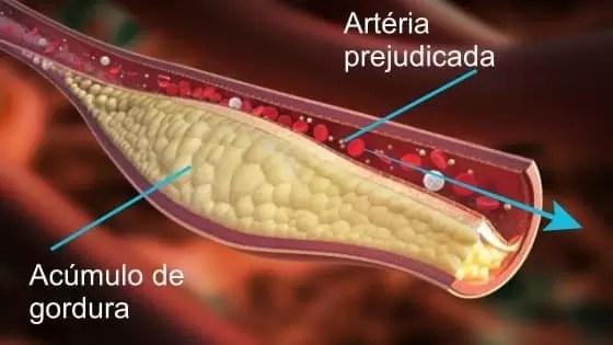 Níveis Normais de Colesterol HDL LDL e Total