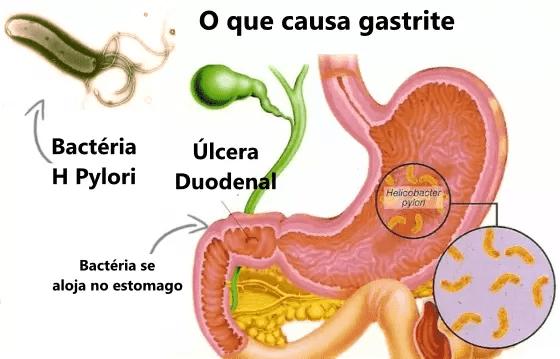 A gastrite tem duas causas principais, infecção bacteriana e o uso de remédios.