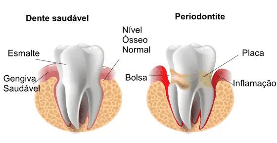 A periodontite é uma infecção grave das gengivas