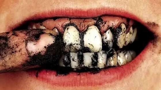 Como Tirar Tártaro nos Dentes-min
