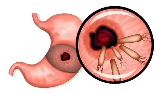 Pylori Sintomas e Tratamento