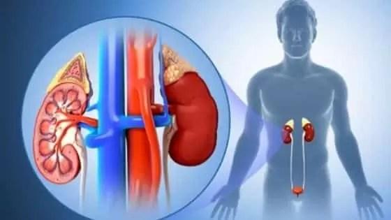 Como evitar pedras nos rins naturalmente