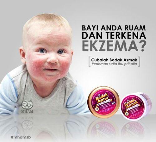 penyakit kulit ekzema