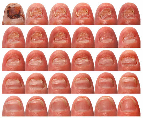 Do You Have Nails That Grown Thick And Toenail Fungus Home Remes Ses Of Repair