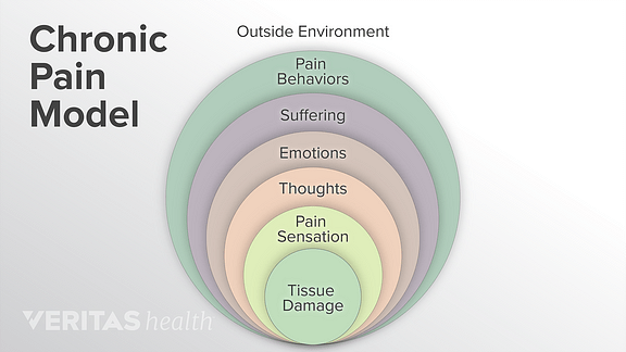A diagram explaining the chronic pain model