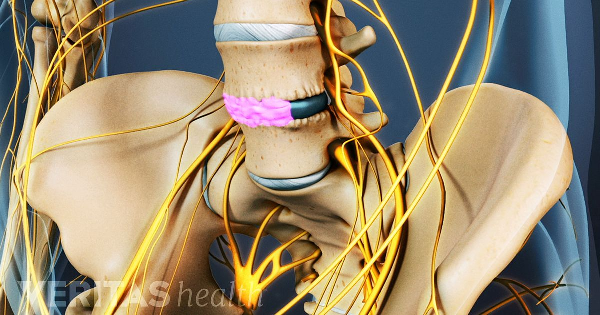 Therapy Retrolisthesis Cervical Physical