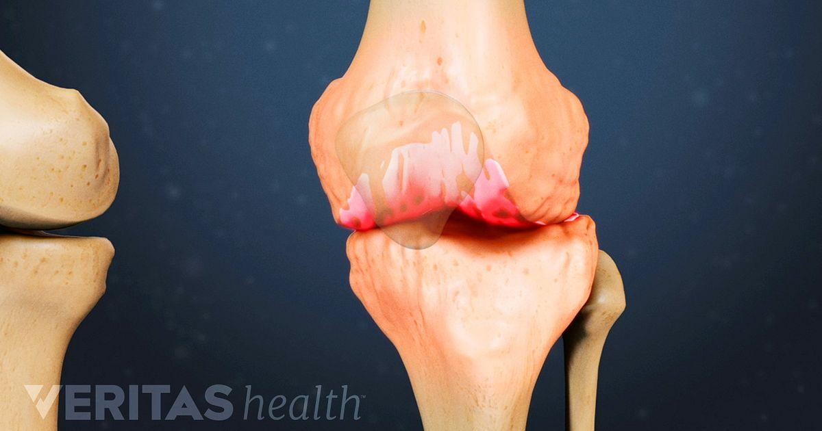 Coping Pain Fibromyalgia