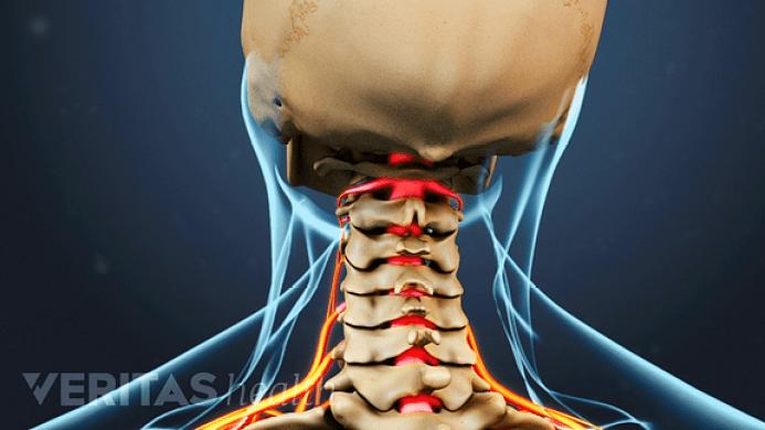 Image result for cervical nerve compression