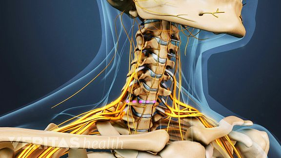 treatment for cervical stenosis with