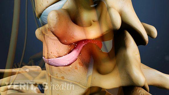 Cervical Degenerative Disc Disease