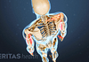 Posterior view of the skeleton showing pain in the body.