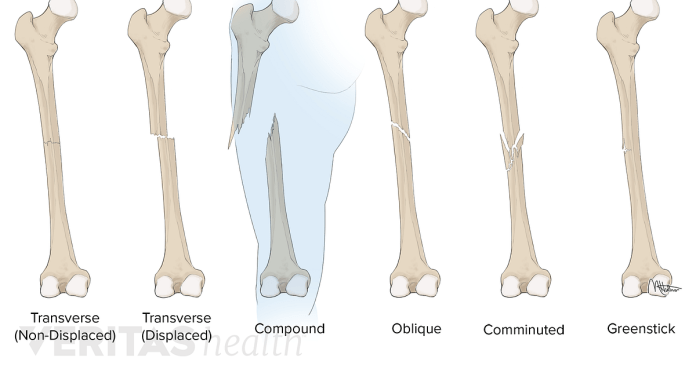 Bone Break vs. Fracture