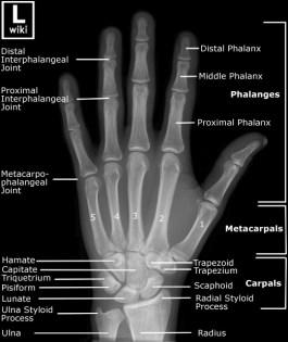 Hand - AP
