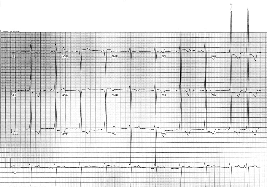 Paediatric ECG Interpretation In The Emergency Department EMCAGE