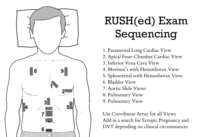 dating scan ultrasound sydney dating of pregnancy ppt