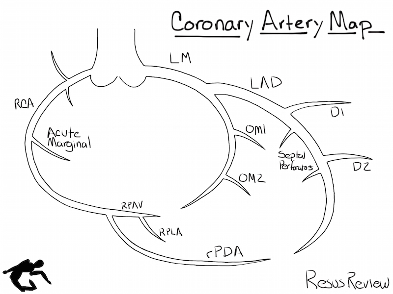 which patient should get acute cath lab activation in mi Deer Heart Diagram coronary artery diagram