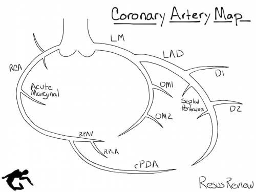 Coronary-Artery-Diagram