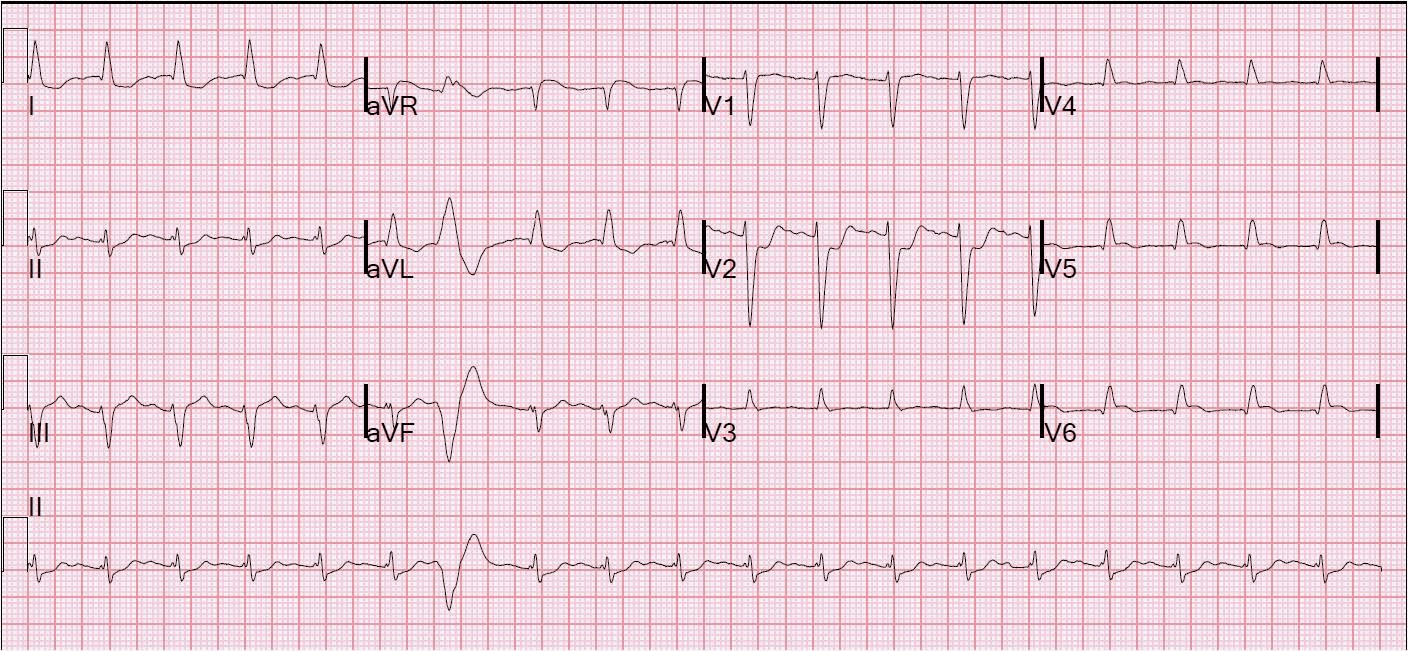 Which Patient Should Get Acute Cath Lab Activation In Mi