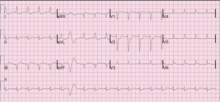 In this ecg, posterior MI is confirmed with > 0.5 mm ST elevation in V7-V9, but just barely [posterior ECG only is shown (V4-V6 are really V7-V9), but you can see the right precordial ST depression in V2, which really is V2]