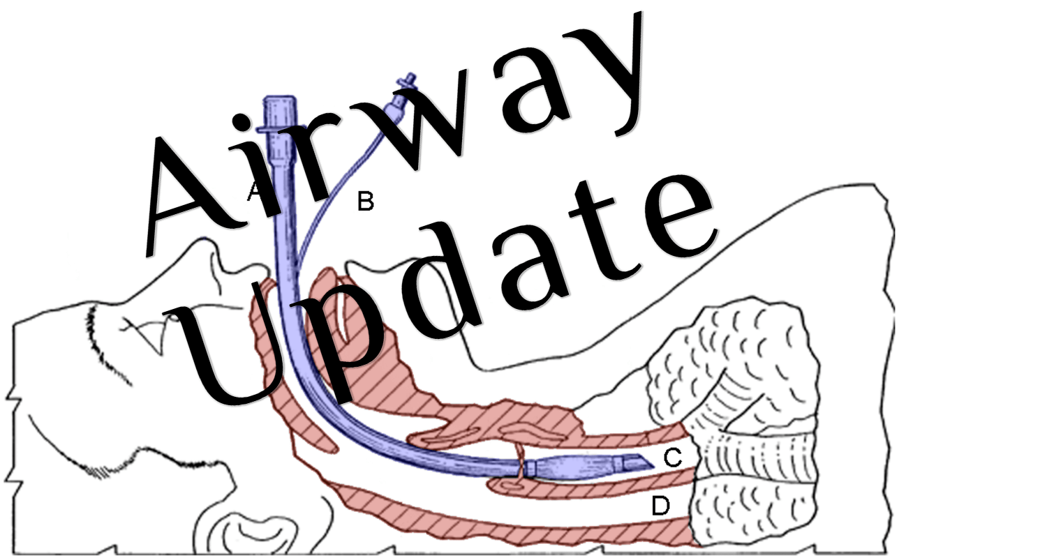 Emcrit Podcast 226 Airway Update Bougie And Positioning