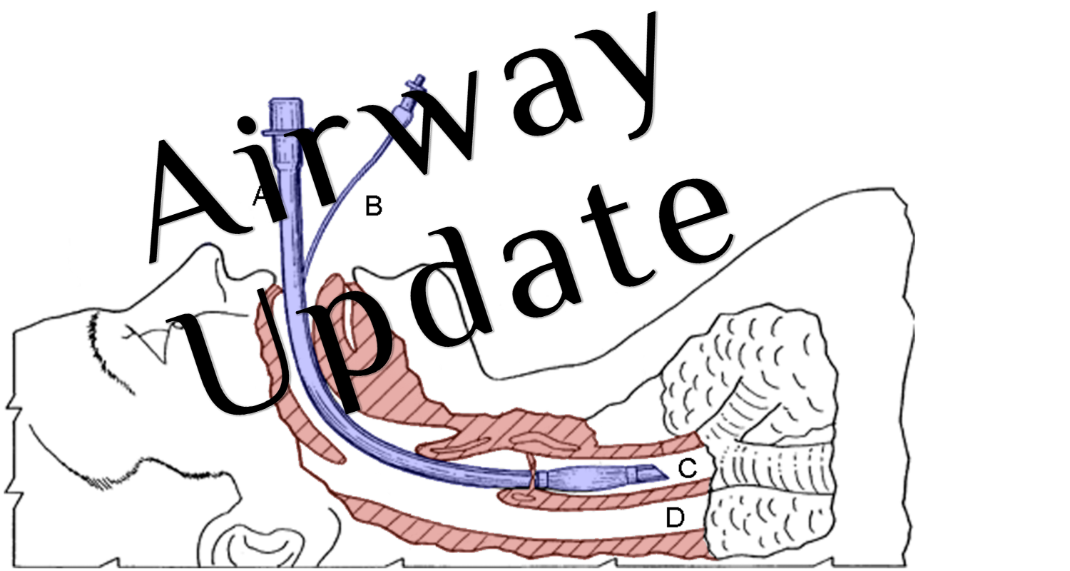 EMCrit Podcast 226 - Airway Update - Bougie and Positioning