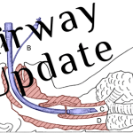 EMCrit Podcast 226 – Airway Update – Bougie and Positioning