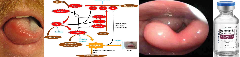 inflamația erizipelată a articulației