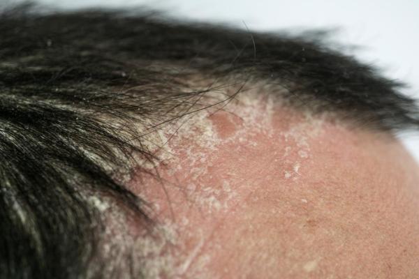 Psoriasis | Difference between Dandruff Psoriasis