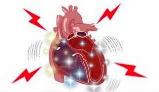 fibrilacion-ventricular