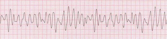 Fibrilación-ventricular_-FV