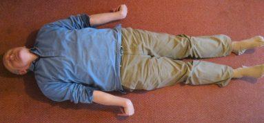 Postura típica de la descerebració (extensió anormal)