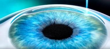 глазная клиника фемтоласик