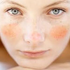 pieles sensibles
