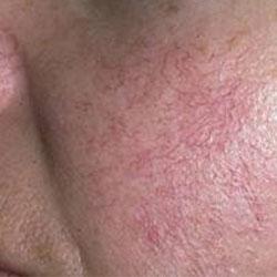 pieles-sensibles-tratamiento