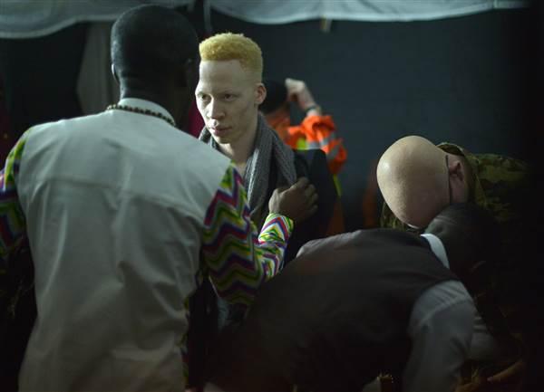 albino-5