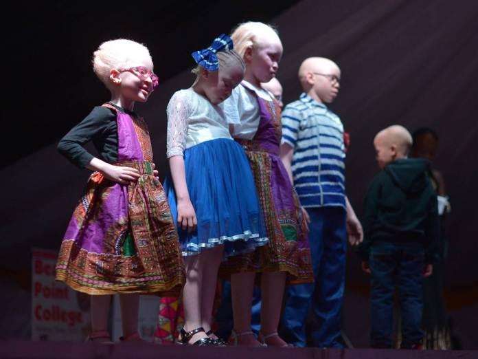 albino-kids