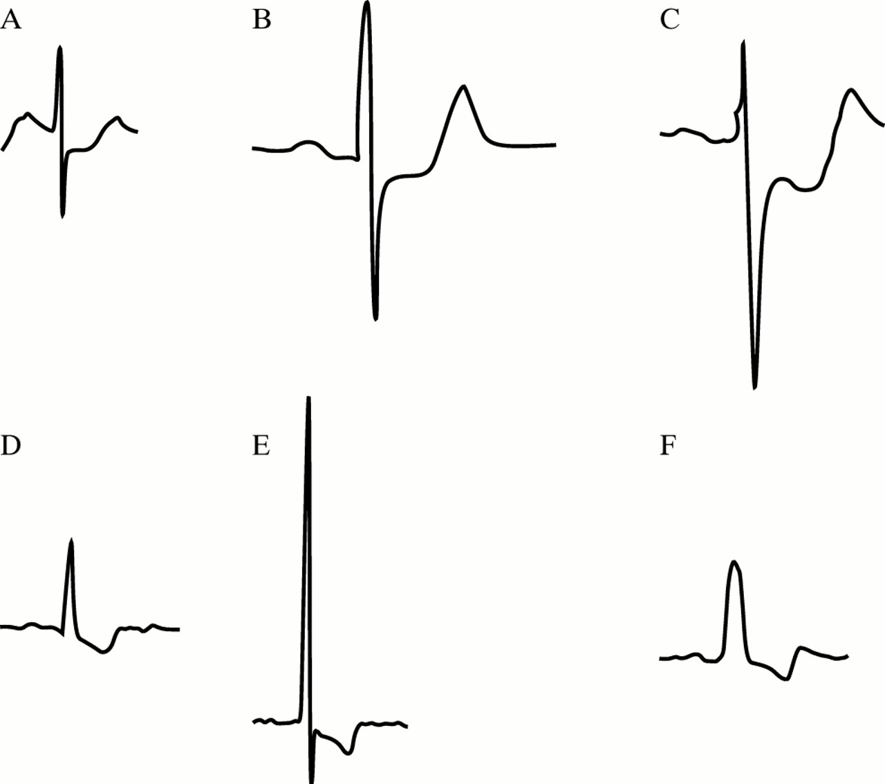 The Electrocardiographic Differential Diagnosis Of St