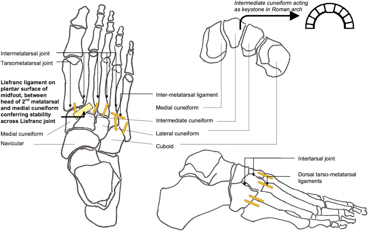 Lisfranc Fracture Dislocation A Review Of A Commonly