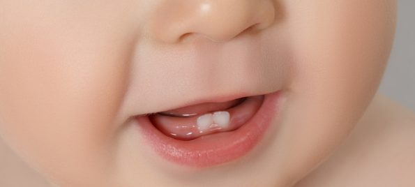 baby's front teeth- teething