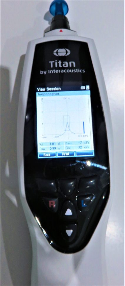 the screen of the tool used to test the health of the eardrum
