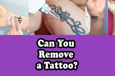 CAN YOU REMOVE A TATTOO