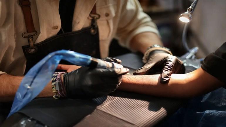 Laseraway Tattoo Removal