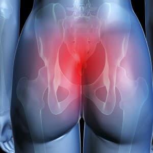 После родов болит копчик и ходить тяжело. Причины сильной боли в копчике после родов