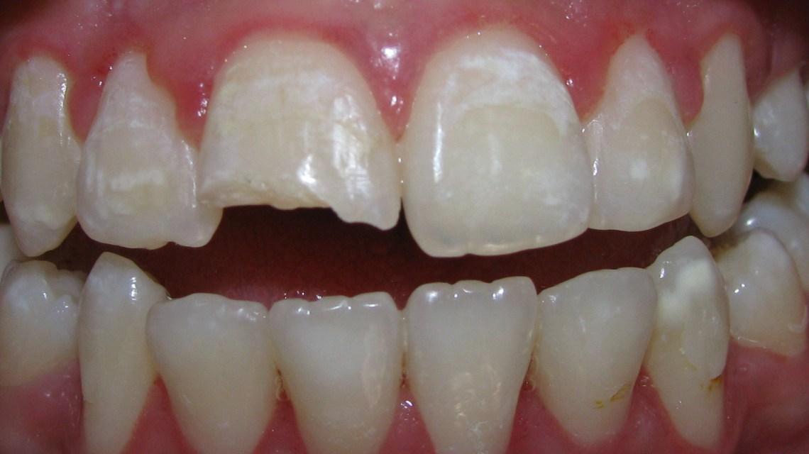 → Quanto os convênios odontológicos pagam ao dentista?