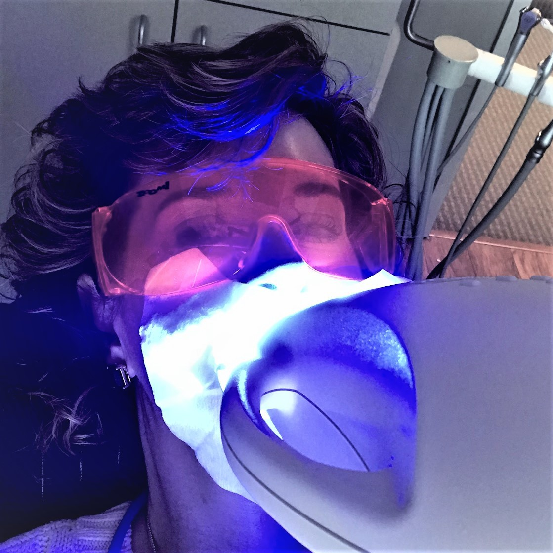 Zoom whitening, teeth whitening, white teeth, whiter teeth, how to get white teeth, how to get whiter teeth, dr brian wong, brian wong, stonbriar dental, zoom, empty nest, empty nester, empty nesters, midlife, anti-aging, anti-aging tips, best anti-aging tips, how to look younger, over50 beauty, beauty tips over 50, over 50 beauty tips