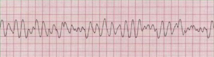 Ventricular Fibrillation National Registry Paramedic